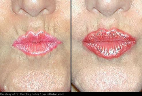 Before and After Cosmetic Lip Filler Treatment