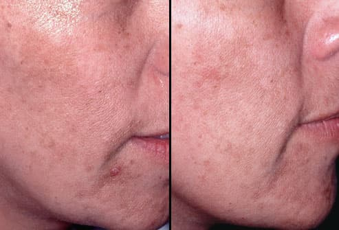 Chemical Peel: Before and After