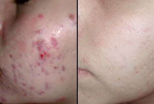 Diode Laser Treatment: Before and After