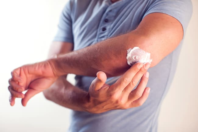 photo of man putting on lotion