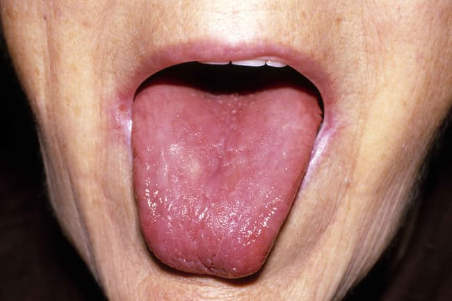 photo of swollen red tongue