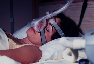 CPAP May Boost Weight Loss for Dieting Adults