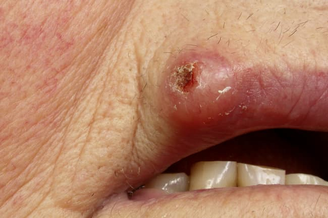 photo of squamous cell carcinoma on lip
