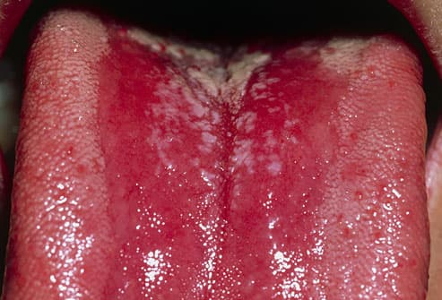 Pimples on tongue