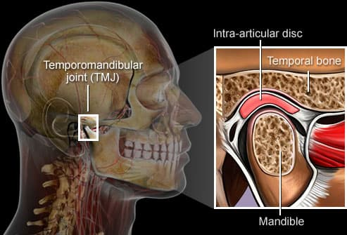 TMJ -- temporomandibular joint syndrome.