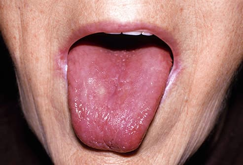 crack in tongue sore