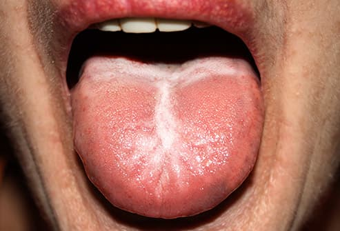 Black coated tongue from oral sex