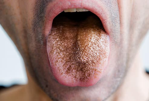 Pictures: What Your Tongue Says About Your Health