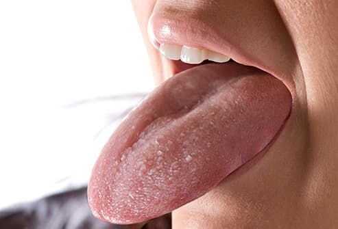red patch on tongue pregnant