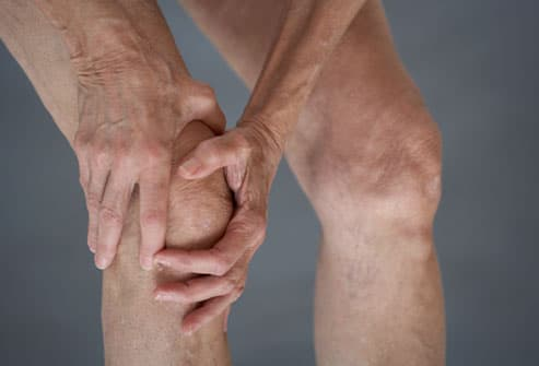 osteoarthritis pictures: which joints are at risk? how can you, Skeleton