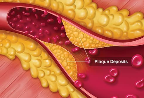 arterial plaque illustration