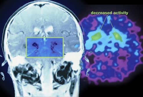 Brain scans showing areas affected by Parkinsons