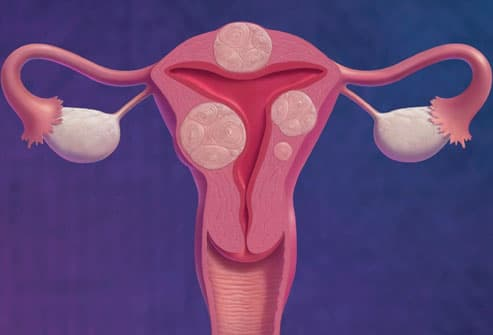 Fibroid Tumors Of The Uterus