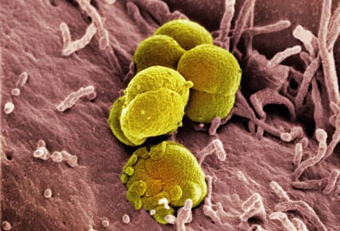 SEM Image Of Gonorrhea