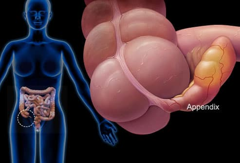 Illustration of Appendicitis
