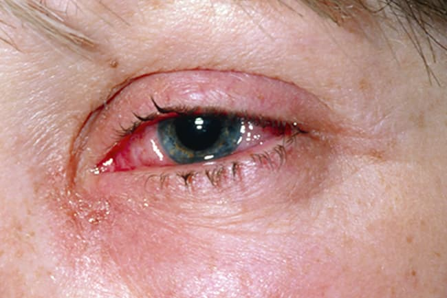 eye with discharge and redness