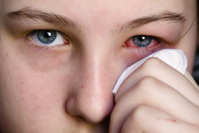 Pinkeye (Conjunctivitis) in Pictures: Types, Treatments, and