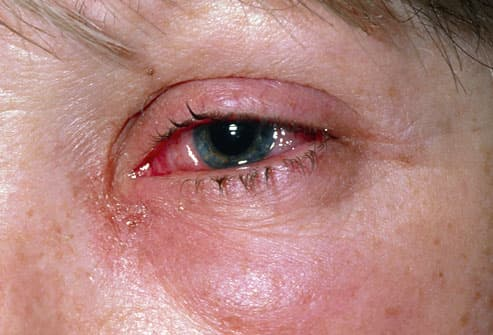 eye irritation caused by viral conjunctivitis