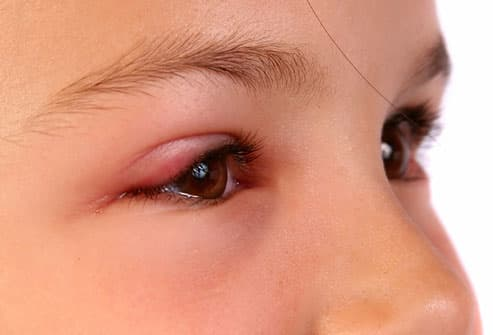 Young girl with swollen eyelid from pinkeye