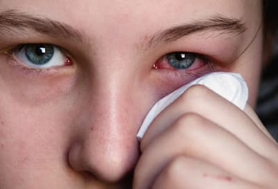 Woman holding tissue to irritated eye