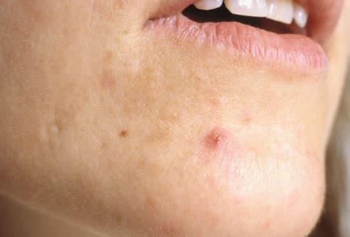 Woman with pimple on face