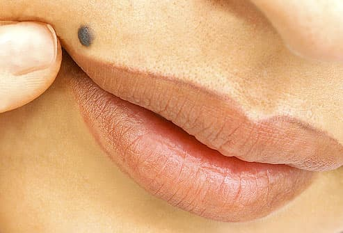 Benign nevus, or mole, above a woman's lip to show the warning signs of skin cancer