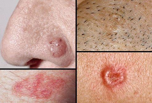 Collage of basal cell carcinoma to show some of the warning signs of skin cancer