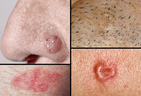 Collage of basal cell carcinoma