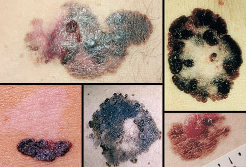 Collage of melanoma