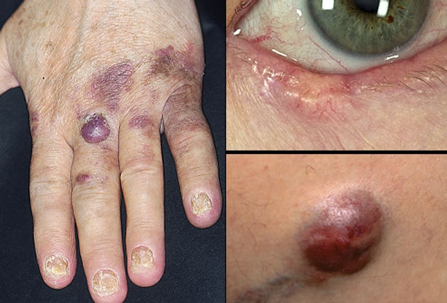Collage of less common skin cancers