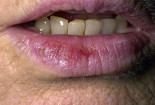 Close-up of actinic cheilitis on lower lip, a warning sign of skin cancer
