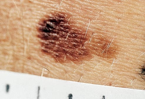 Skin Cancer Symptoms: Pictures of Skin Cancer and