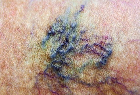 spider veins close up