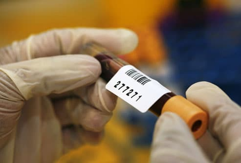 PSA Results On Blood Sample