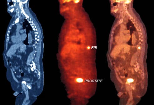 Image result for picture of metastatic prostate cancer