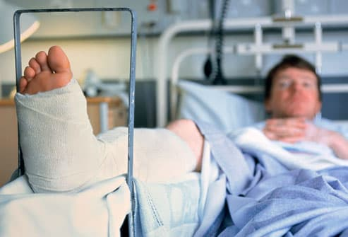 Man with a broken leg in a plaster cast