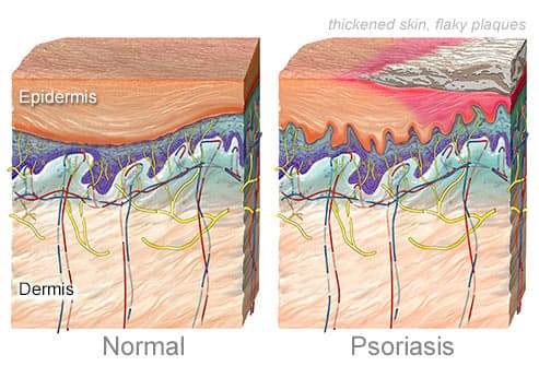 normal skin and skin With psoriasis
