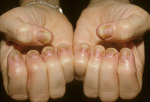 Skin Plaque Psoriasis on Fingernails