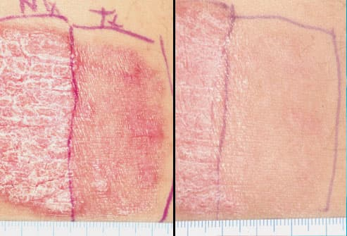 Effects of Laser Therapy on Psoriasis