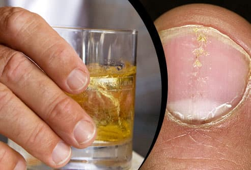 Glass of whiskey/Psoriasis on thumbnail