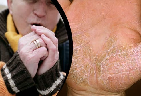 Shivering man outside/Psoriasis on palm of hand