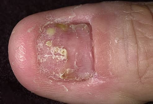fingernail with psoriasis