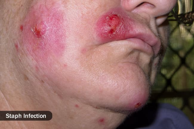 photo of staph infection on face