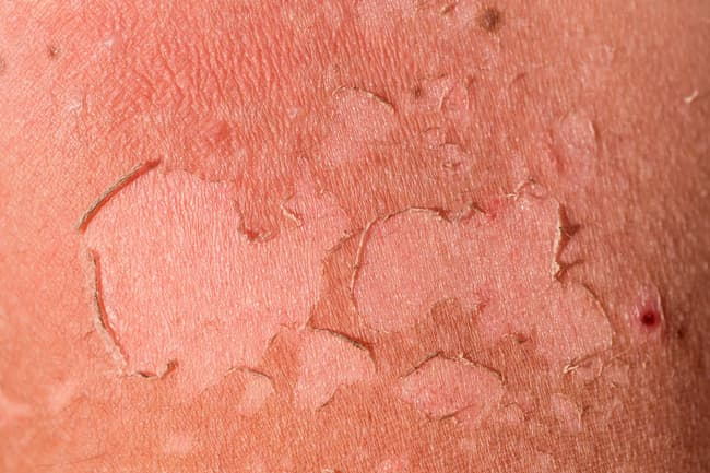 photo of sunburn