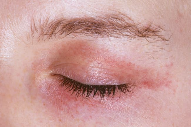 photo of red rash on eye