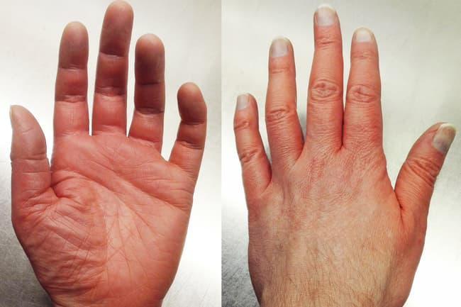 photo of hand with red discoloration
