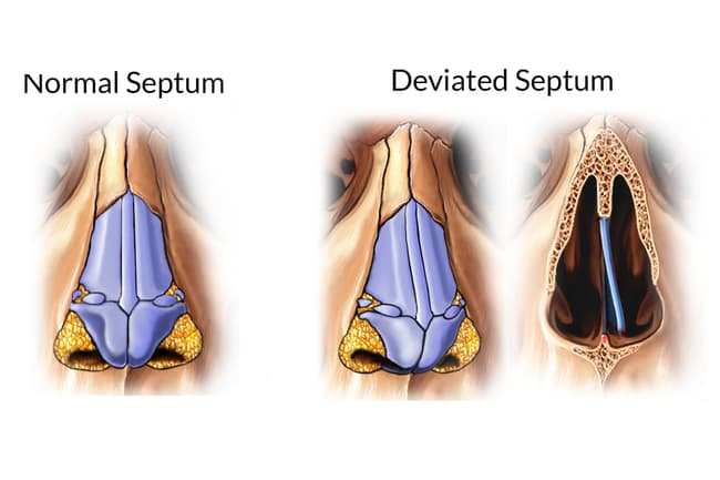 illustration comparison of deviated septum
