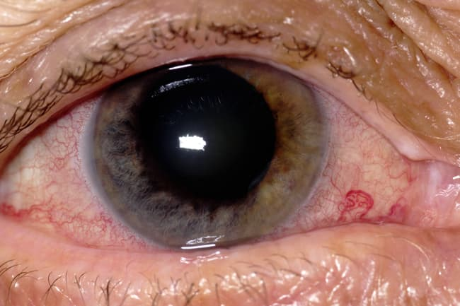 photo of acute closure glaucoma