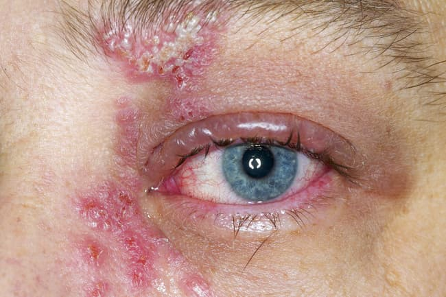 photo of shingles rash on eye