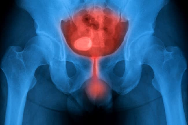 X-ray of bladder
